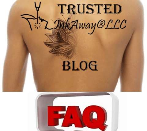Most frequently asked questions by customers of laser tattoo removal