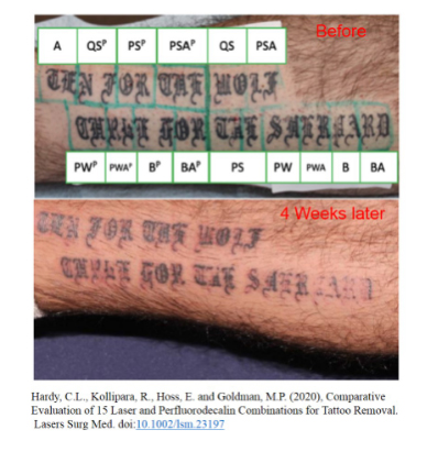 Telling the truth of laser tattoo removal by your own eyes