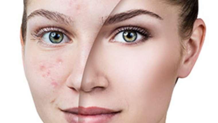 Acne Scar Reduction