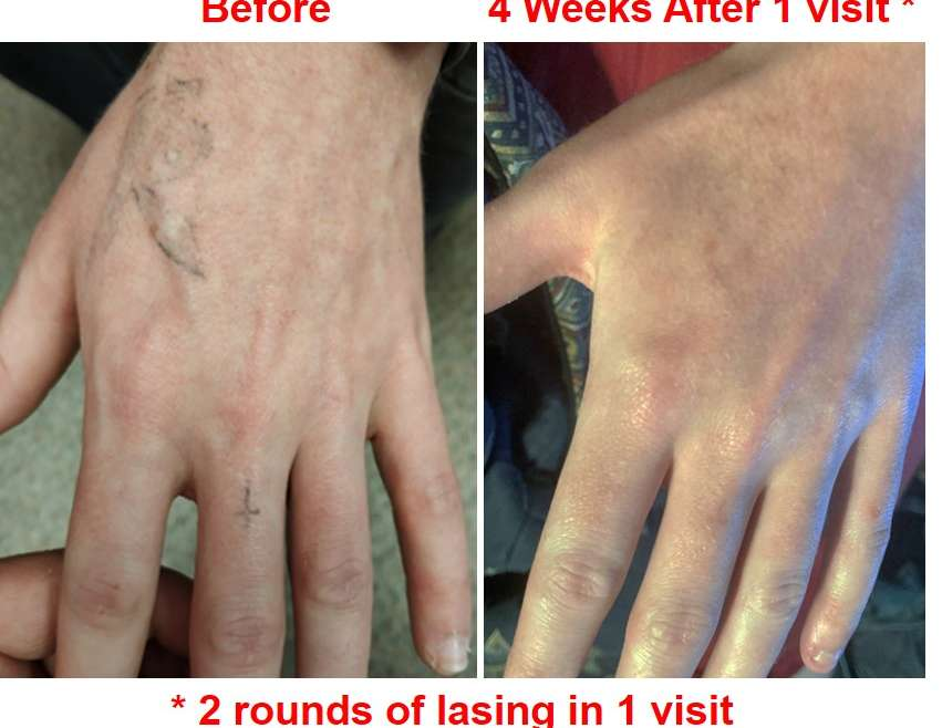 How to look at laser tattoo removal before & after photos?