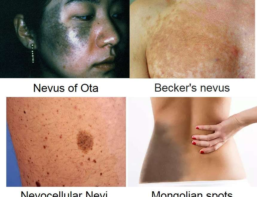 Dermal Pigmented Lesions Removal