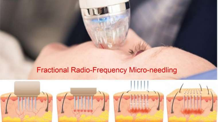 Fractional Radio-Frequency Micro-Needling Skin Rejuvenation