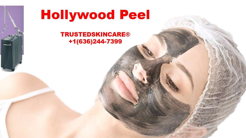 Hollywood peel by Medlite C6