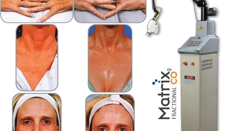 Skin resurfacing with Sandstone Matrix CO2 fractional laser